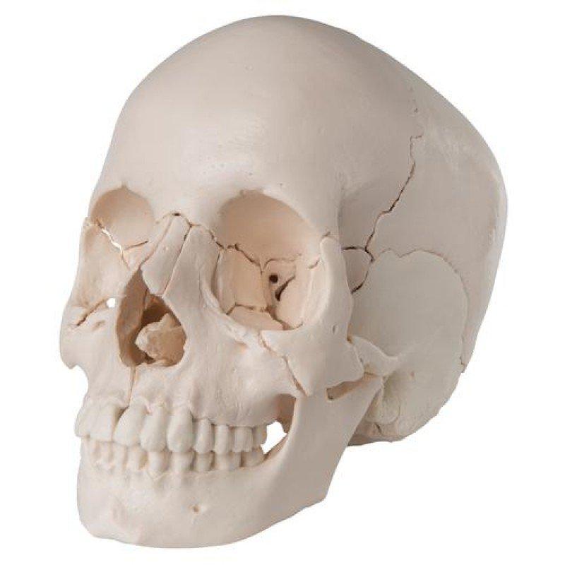 Craniu Uman A 30