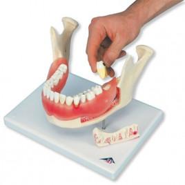 Boli Ale Dintilor D 26