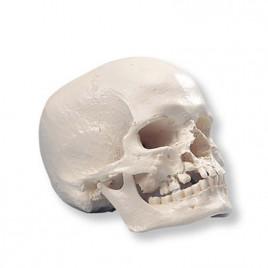 Craniu Uman Cu Malformatii A 29